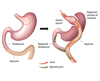 Recalcitrant Hypocalcemia in Roux-en-Y Gastric Bypass Patients After Parathyroidectomy: Successful Management With Gastrostomy Tube Placement