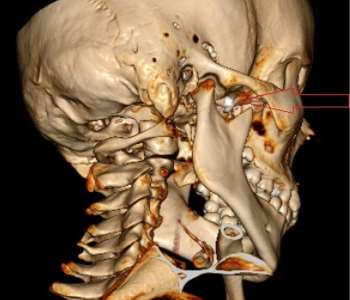 An Unusual Foreign Body Within the Pterygopalatine Fossa: A Case Report