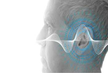 Auditory Evoked Potential in Patients with Tinnitus