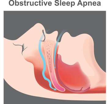 Voice, Cough, and Diurnal Breathing Problems and Quality of Life in Obstructive Sleep Apnea