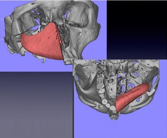 Computer-Assisted Reconstruction of the Hemimaxillectomy Defects With a Composite Iliac Crest Bone Free Flap: Case Reports
