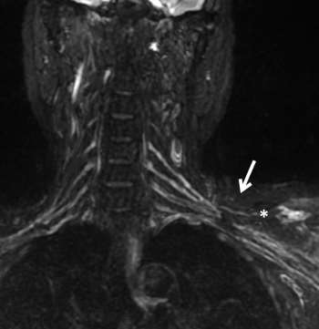 Role of Magnetic Resonance Imaging in Localization of Acute Brachial Plexus Injury