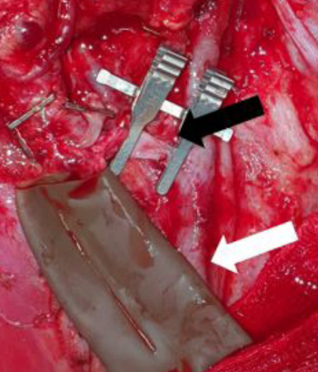 An Innovative Technique to Maintain a Clear Surgical Field During Venous Anastomosis in Free Flap Transfer for Head and Neck Reconstruction