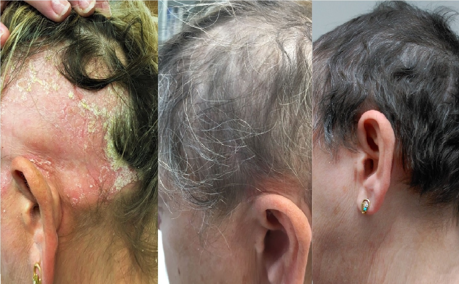 Alopecia Areata and Severe Psoriasis Successfully Treated with Apremilast