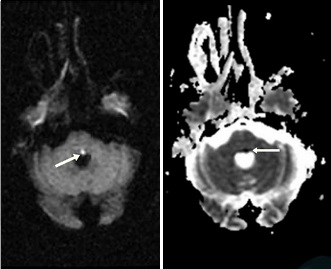 Eight-and-a-Half Syndrome Presented with Trigeminal Neuralgia