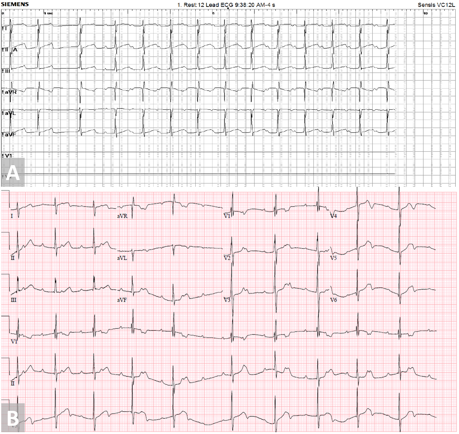 Early Progressive Atrioventricular Block After Amplatzer Septal Occluder Closure of a Large Atrial Septal Defect