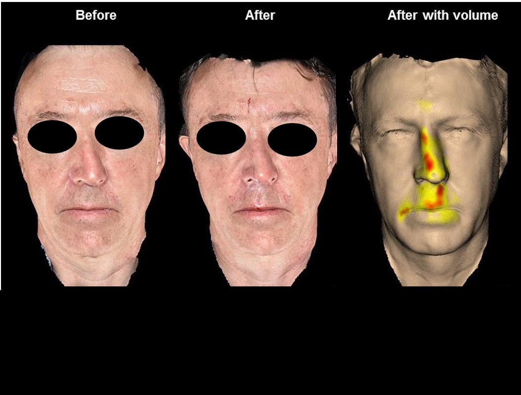 Nasal Aging and Rejuvenation