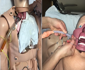 Novel Otolaryngology Simulation for the Management of Emergent Oropharyngeal Hemorrhage