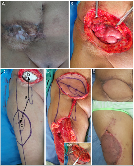 The Versatility of Pedicled Anterolateral Thigh Flap: A Tertiary Re-ferral Center Experience from India