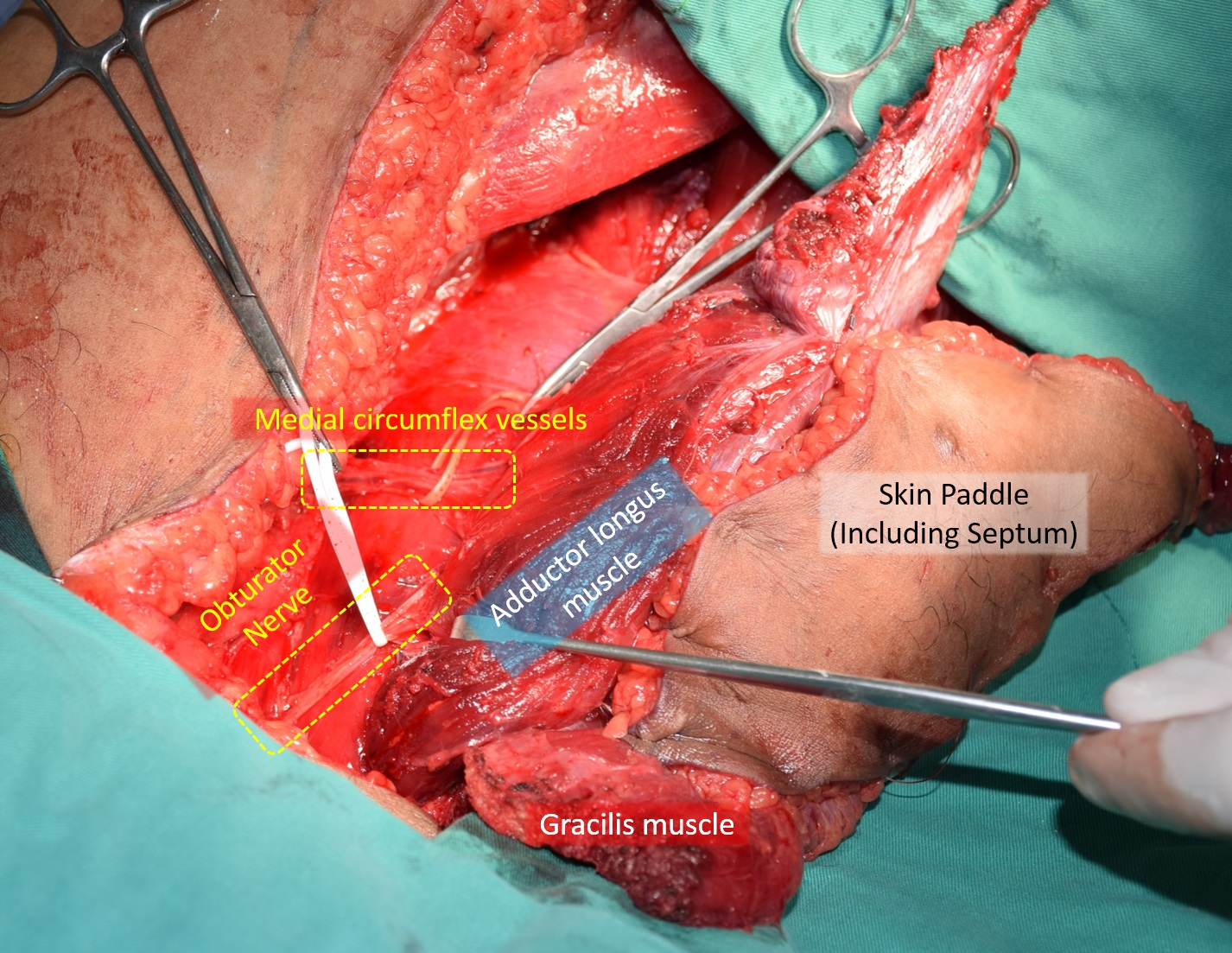 Double Functioning Free Muscle Transfer as a Salvage Procedure for Brachial Plexus Injury After Failed Nerve Transfer