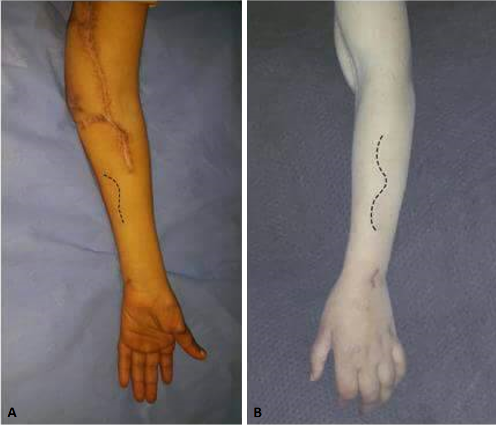 Innovative Management Strategy for Combined Proximal Median and Ulnar Nerve Extensive Injury: A Case Report