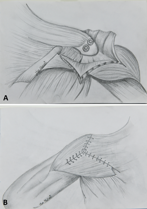 Role of Trapezius Transfer for Shoulder Reconstruction in Adult Traumatic Brachial Plexus Injuries: Literature Review