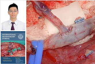 Chang's Technique of Sequential End-to-Side Microvascular Anastomosis