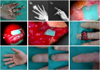 Fingertip (Tamai Zone I) Replantation under Local Anesthesia