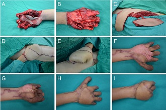 Sandwich Flap Reconstruction for a Degloving Hand Injury