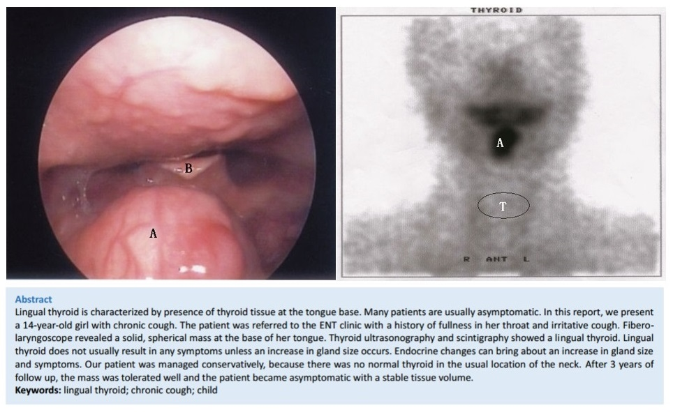 A Rare Cause of Chronic Cough in Children: Lingual Thyroid