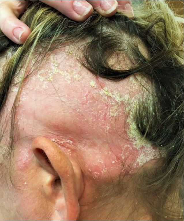 Alopecia Areata and Severe Psoriasis Successfully Treated with