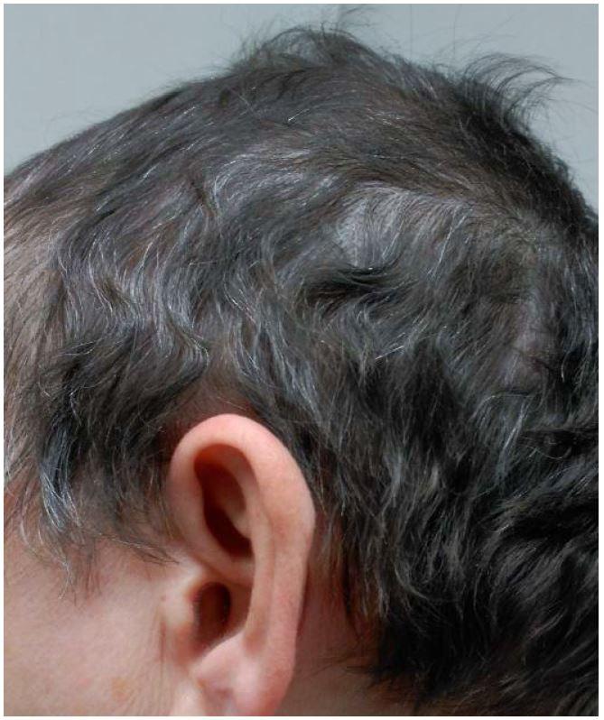 Alopecia Areata and Severe Psoriasis Successfully Treated