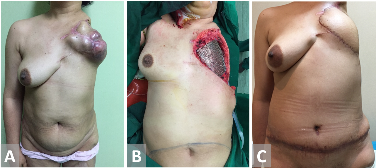 Modalities For Chest Wall Reconstruction Following Cancer Ablation A Single Center Experience Scitemed Publishing Group